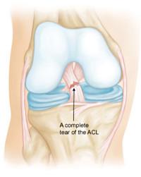 Anterior Cruciate Ligament torn knee