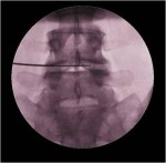 Minimally invasive spine surgery Nucleoplasty