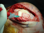 microfracture cartilage repair