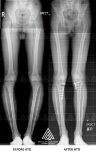 Knee osteotomy surgery