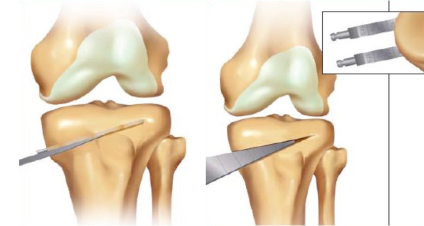 Knee osteotomy | Singapore Surgeon | Delay Joint Replacement