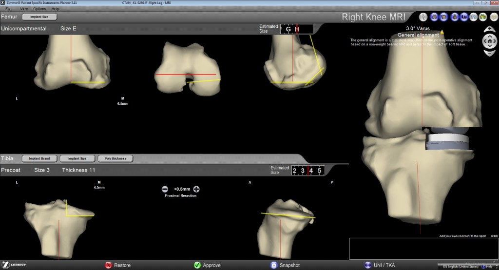 Patient Specific Instrumentation PARTIAL KNEE REPLACEMENT