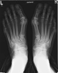 bunion foot surgery