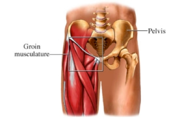 Groin Muscle Pain