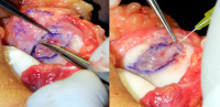 cartilage cells injection