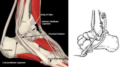 Chronic Ankle Instability