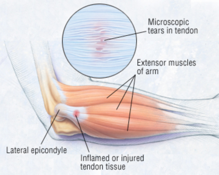 Total Elbow Replacement Surgery Singapore Sports Surgeon