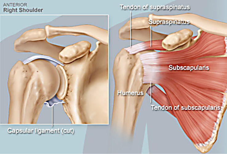 Shoulder Surgery Singapore Renowned Surgeonrepair Tear