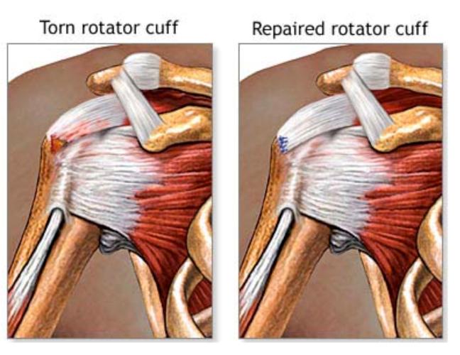 Shoulder Surgery |Singapore Renowned Surgeon|Repair Tear