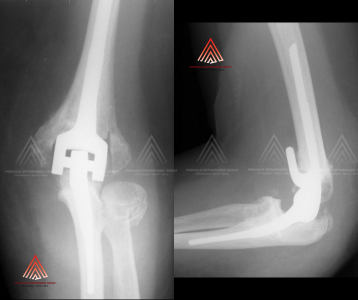 Elbow Joint Replacement