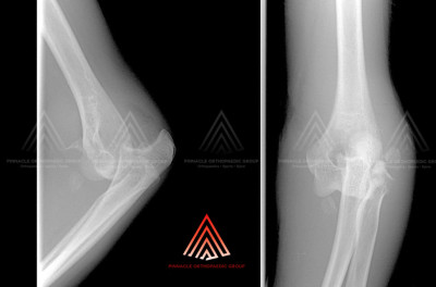 Elbow Dislocation (Terrible Triad)