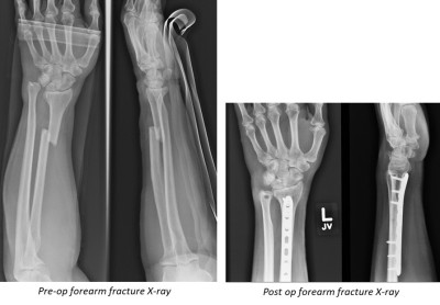 X-rays forearm fracture