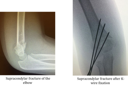 broken bones in children supracondylar fracture