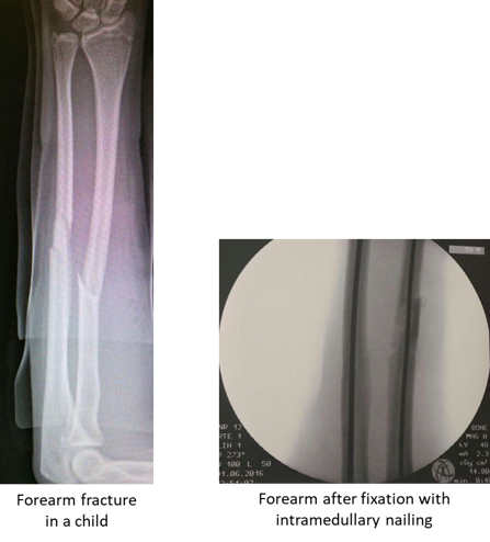 child forearm fracture