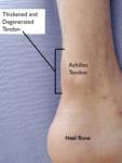 Achilles Tendinitis Noninsertional