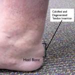 Achilles Tendinitis insertional