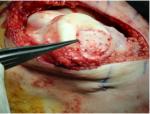 microfracture cartilage repair