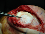 Step 3 - Applying Chondrogide membrane to the defect