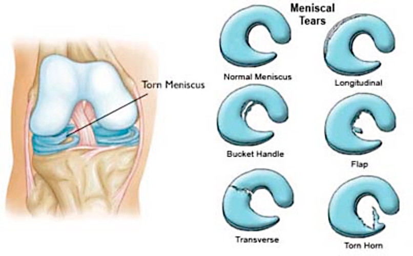 Image result for meniscal tears