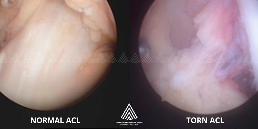 Anterior Cruciate Ligament differences
