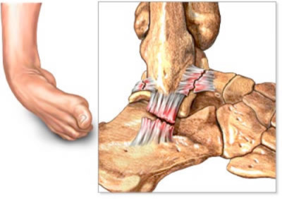 ankle joint tear