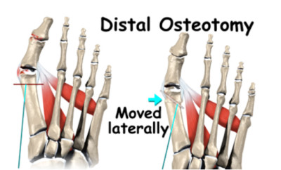 osteotomy foot surgery