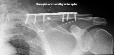 clavicle fracture plates and screws