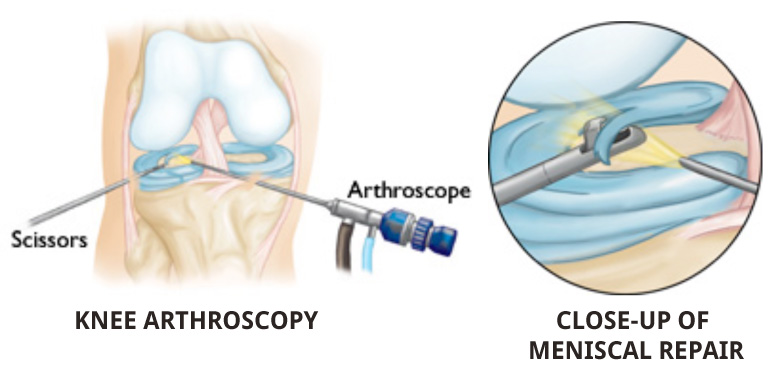 Knee Arthroscopy