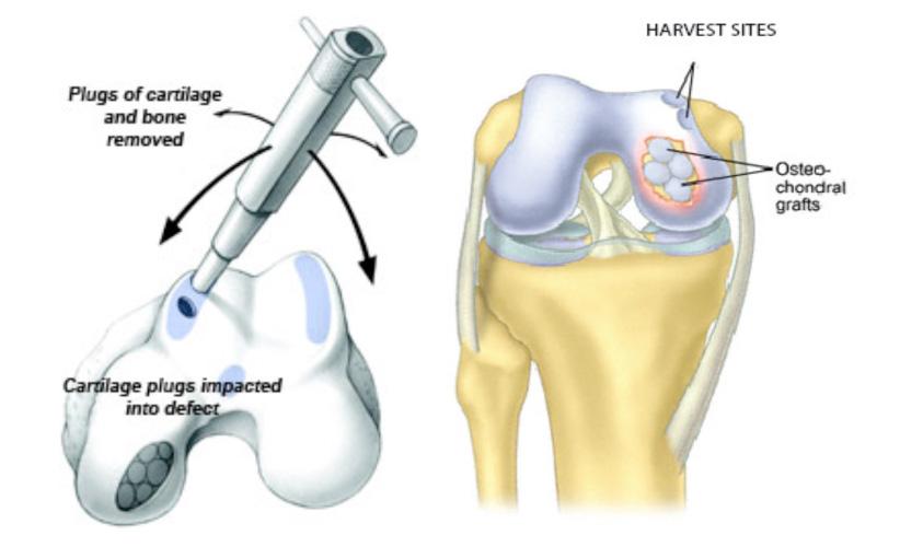 cartilage transplant