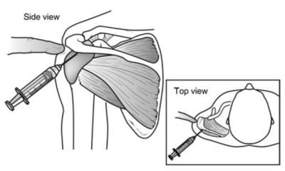 rotator cuff injection