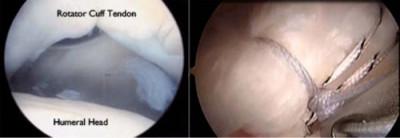 rotator cuff surgery repair