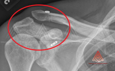 AC Joint Dislocation After Fixation X-ray