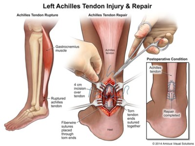 Achilles Tears Treatment Left Achilles tendon injury and repair