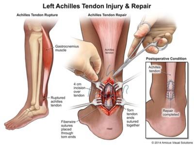 Achilles Tears Treatment Left Achilles tendon injury and repair