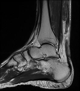 MRI of Achilles tendon tear