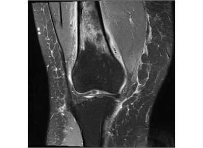 Foot doctor MRI stress fracture of the thigh bone