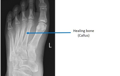 X-ray showing a healed foot stress fracture