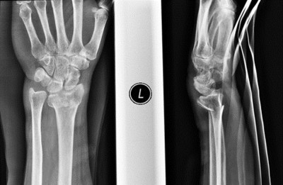 Pre-op X-rays of a wrist fracture