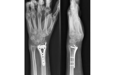 Wrist Fracture Surgery