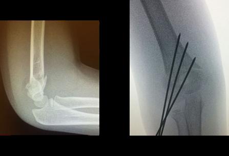 broken bones in children supracondylar fracture