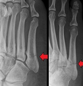 metatarsal bone fracture