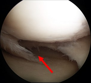 Degenerative meniscus tear in a older patient seen during arthroscopy