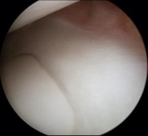 Normal healthy meniscus seen during arthroscopy