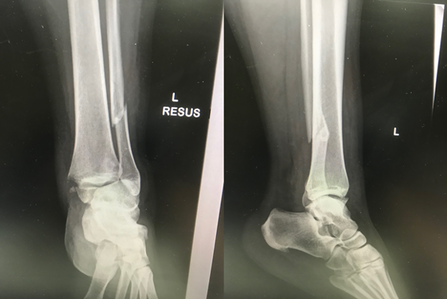 Ankle fracture pre op