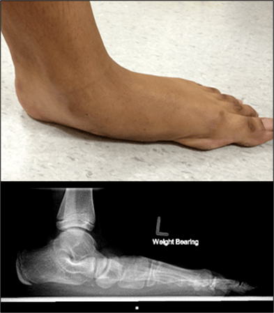 Figure 10a. Flatfoot