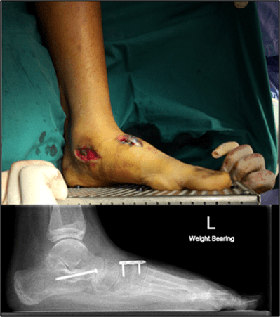 Figure 10b. Flatfoot