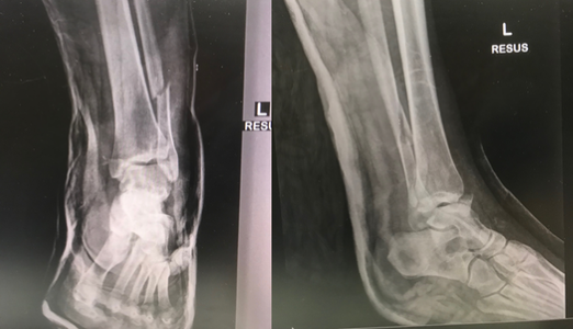Figure 2. Ankle Fracture Treatment X-rays