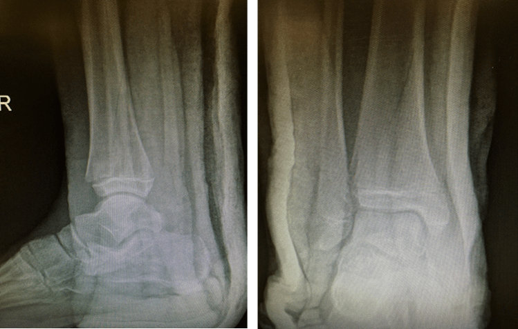Figure 22. Paediatric Fractures