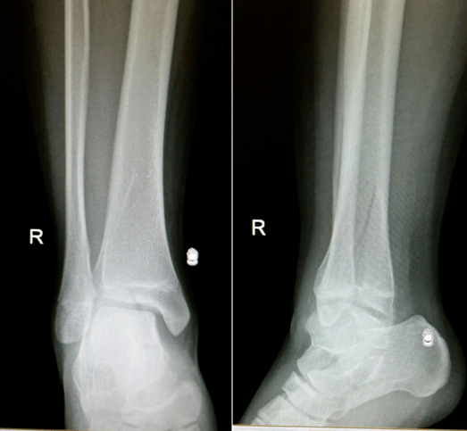 Figure 25. Paediatric Fractures