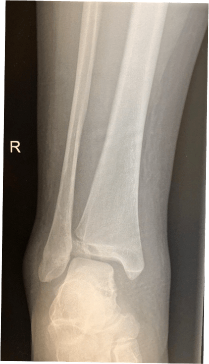 Figure 29. Paediatric Fractures